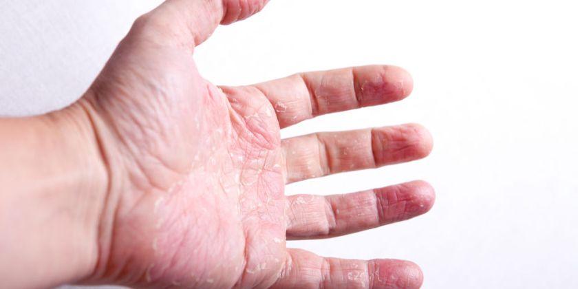 mano con psoriasi