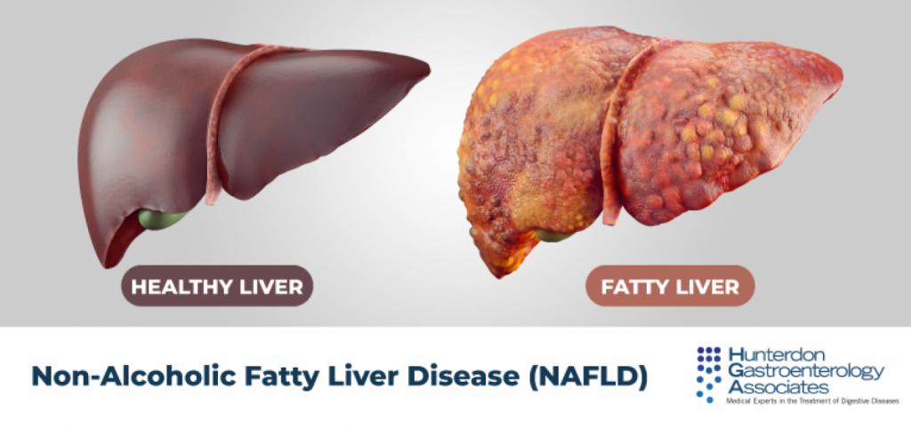 alimentazione per il fegato grasso