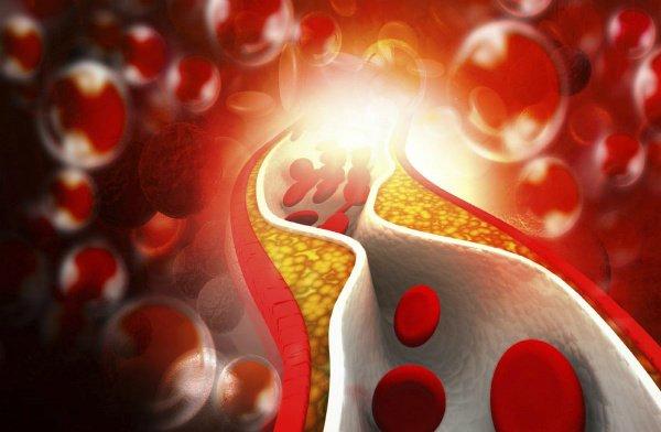 Colesterolo totale, HDL e LDL