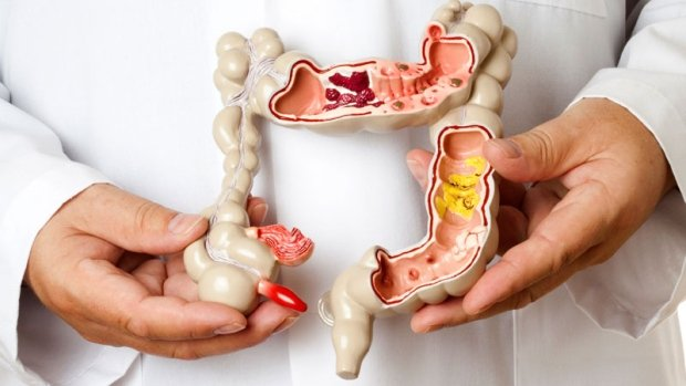 IBS – La sindrome dell'intestino irritabile